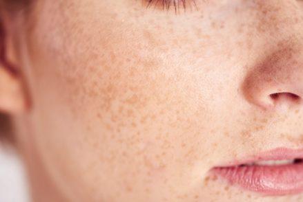 Wie funktioniert die Haut?